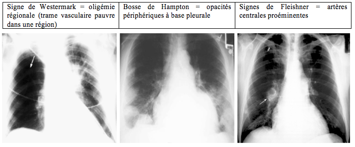 Embolie pulmonaire - radiographies
